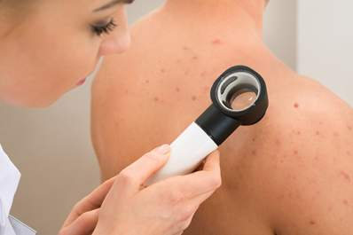 Dermatologist examining skin on woman's shoulder.