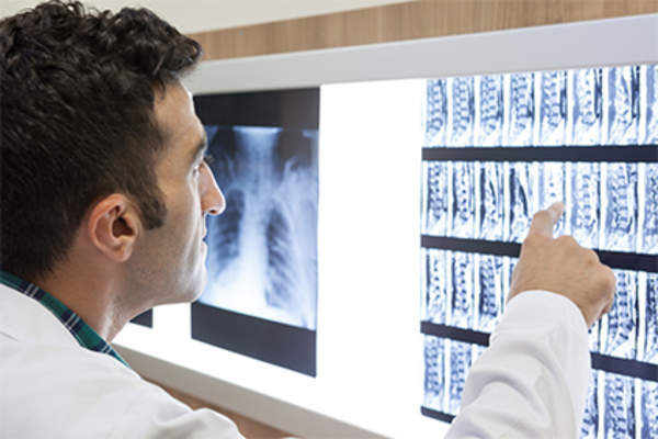 Doctor looking at x-ray images of the spine.