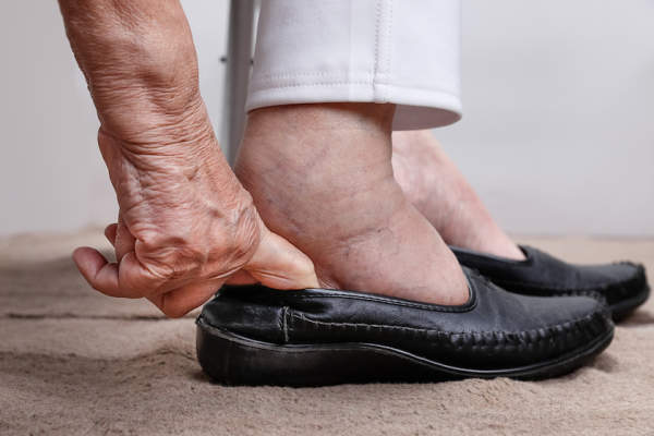 Trying to squeeze swollen feet into shoes.