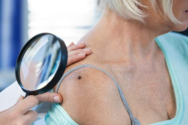 Dermatologist examining mole of female patient with magnifying glass.