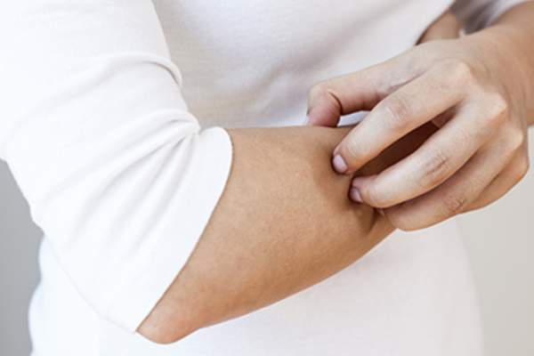 Woman scratching skin on arm.