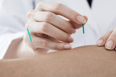 Can Acupuncture Relieve Fibromyalgia Pain?