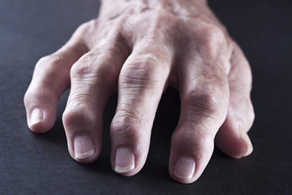 Arthritic inflammation of the finger joints.