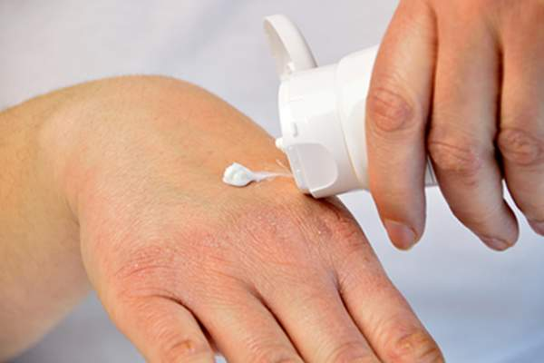 Putting moisturizer on dry skin of hand.