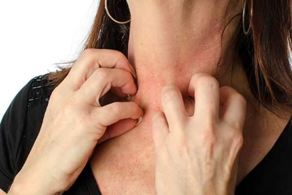 Woman with eczema scratching her neck.