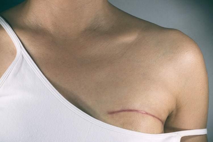 Scar from breast surgery