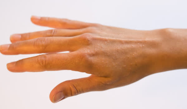 Hand with dyshidrotic eczema.