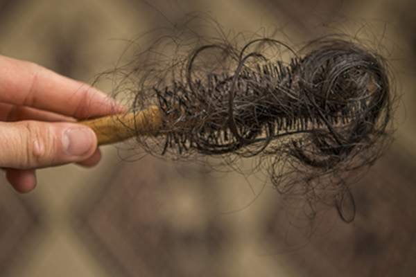 Person holding hairbrush with clumps of hair