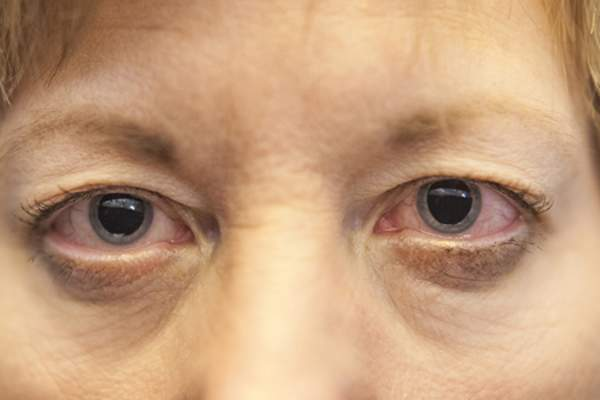 Woman with dilated pupils image.