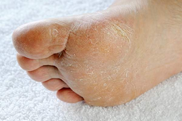 Callus on bottom of foot.