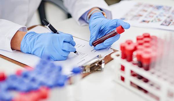 Doctor with blood sample and lab test form.