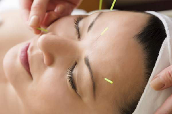Woman receiving acupuncture treatment in her face.