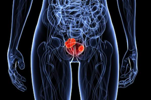Highlighted bladder cancer