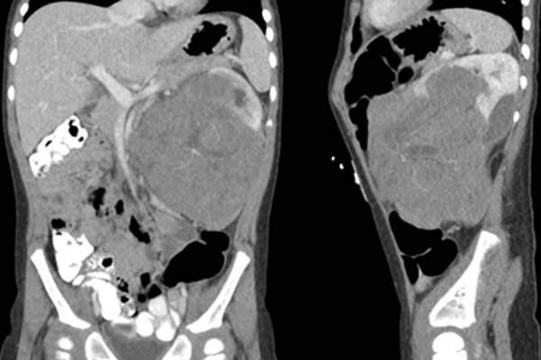 Wilms tumor imaging.