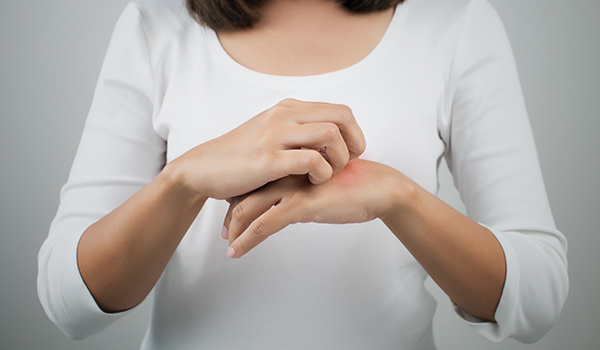 A woman itching the back of her hand.