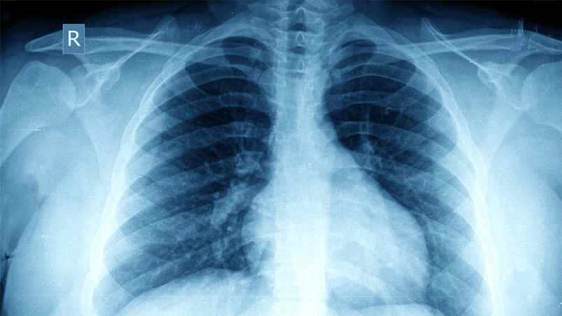 Chest X-ray in obese person.
