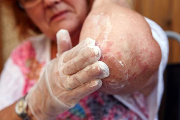 Woman applying topical steroid cream to elbow eczema.
