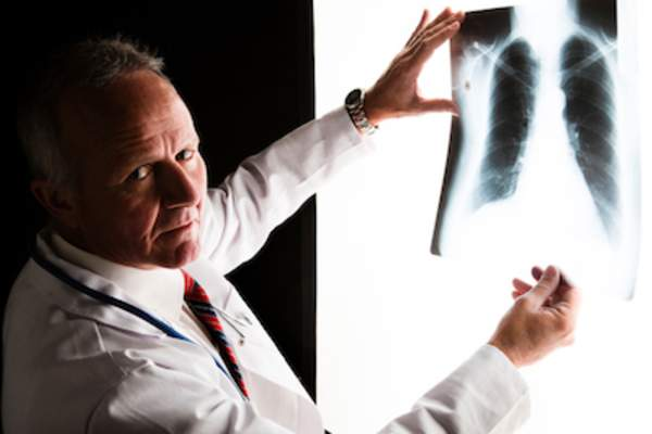 Doctor viewing cancerous lung x-ray.