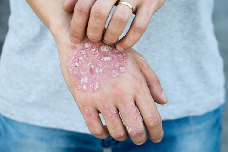 Man with psoriasis scratching his hand.