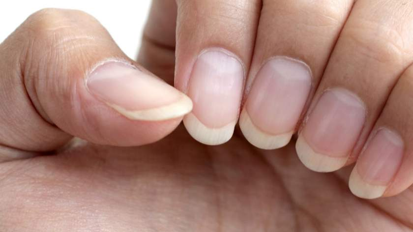 Watch for Skin Cancer Under the Nail | HealthCentral