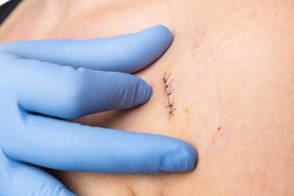 Doctor performing follow-up check after mole removal.
