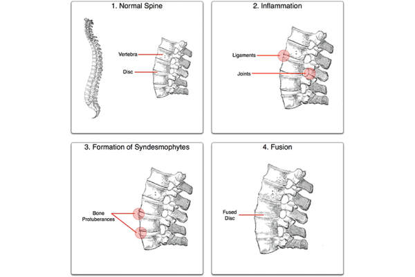 The ankylosis process, made by Senseiwa, with an image of the spine from Gray's Anatomy