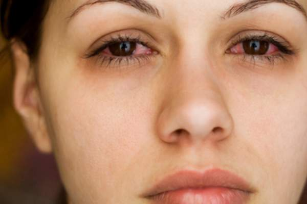 Woman with a lot of redness in whites of eyes.
