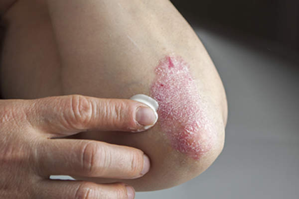 Rubbing ointment on elbow psoriasis.