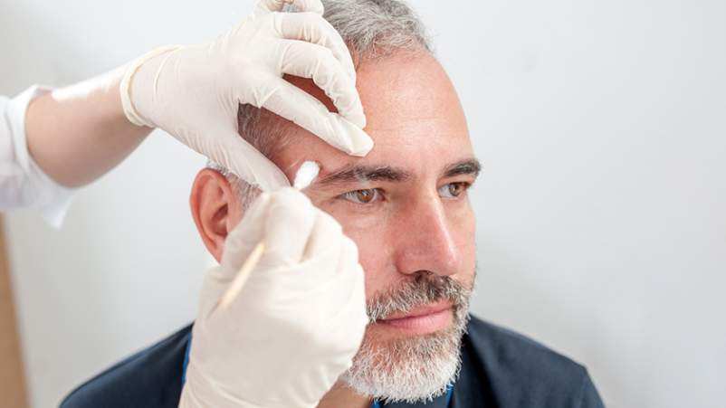 Dermatologist performing a procedure on a middle-aged man.