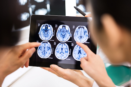 Doctors examining brain scans