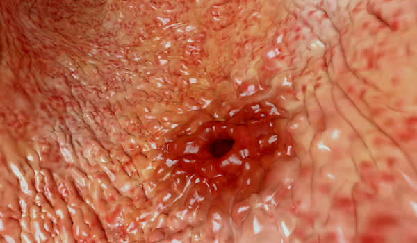 Close up of peptic ulcer in stomach, digital rendering.