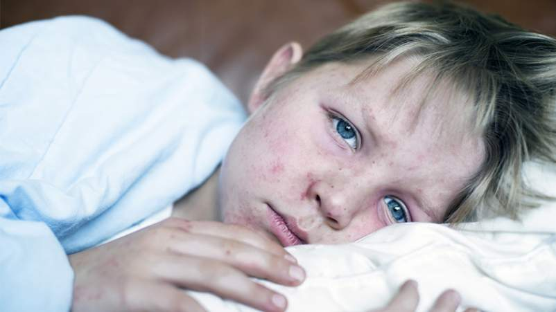 Boy sick with measles.