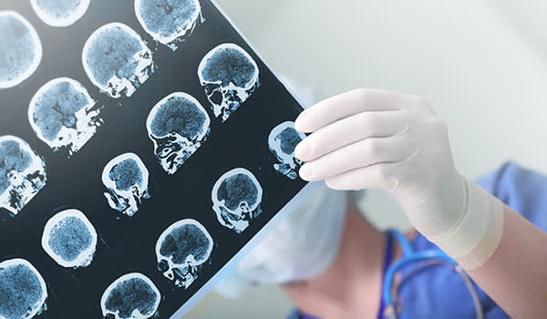 Doctor looking at brain scan images.