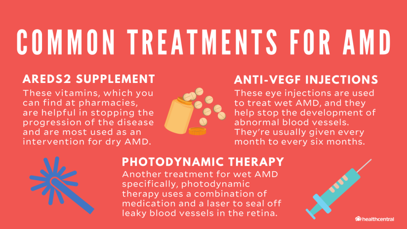 Common treatments for AMD include AREDS2 supplement,  anti-VEGF injections, and photodynamic therapy