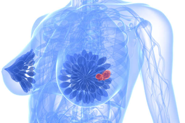 Metastatic Breast Cancer Warning Signs To Watch For Healthcentral