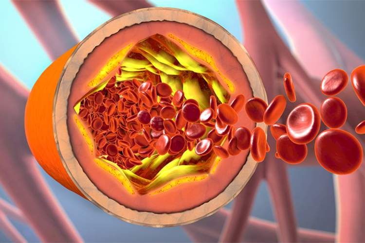Illustration of cholesterol in artery.