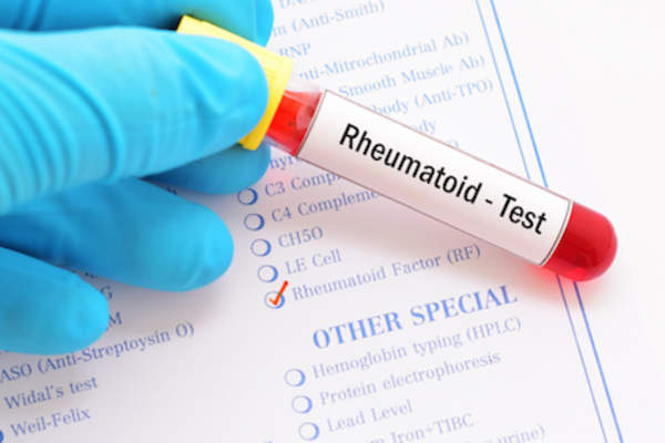 Rheumatoid blood test, checking for RF