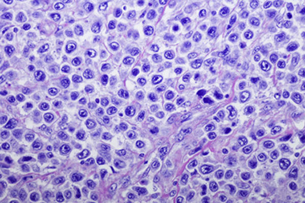 Diffuse large B-cell lymphoma.