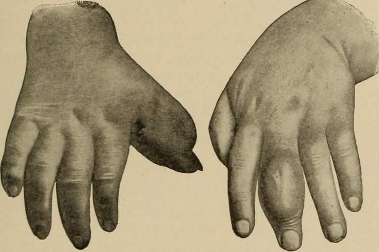 dactylitis.