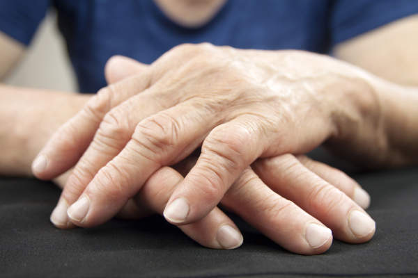 Hands with rheumatoid nodules.