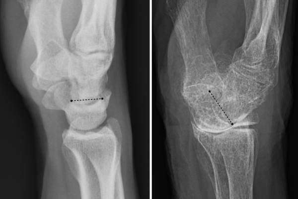 A normal wrist (left image) and one (right image) with a tilted wrist joint due to osteoporosis.