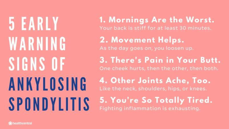 Warning signs of ankylosing spondylitis: morning stiffness, loosening up with movement, pain in the butt, joint aches, fatigue