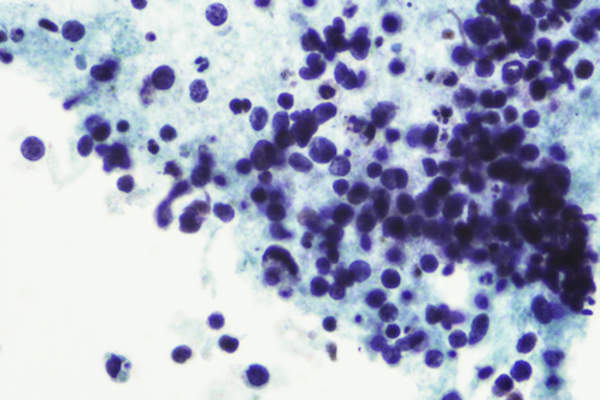 Micrograh of small cell lung cancer