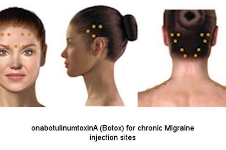 Female head with injection sites for botox highlighted.