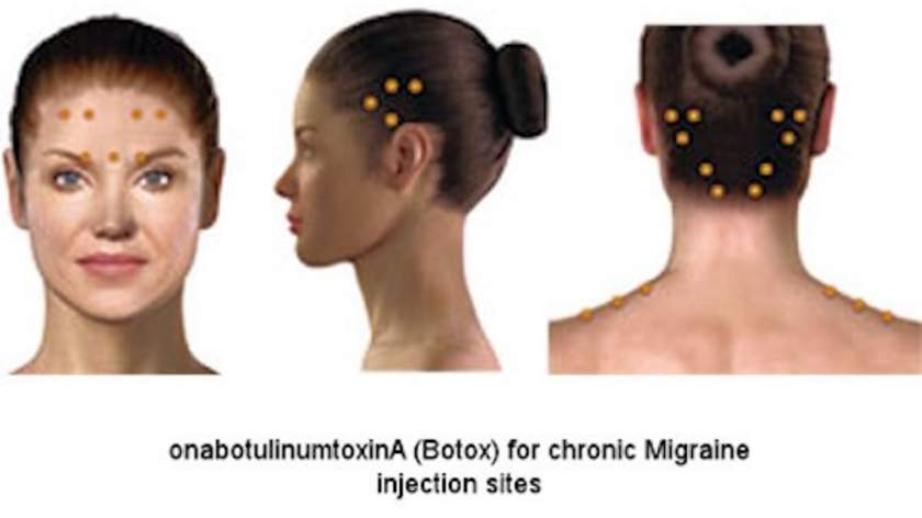 Image result for migraine botox
