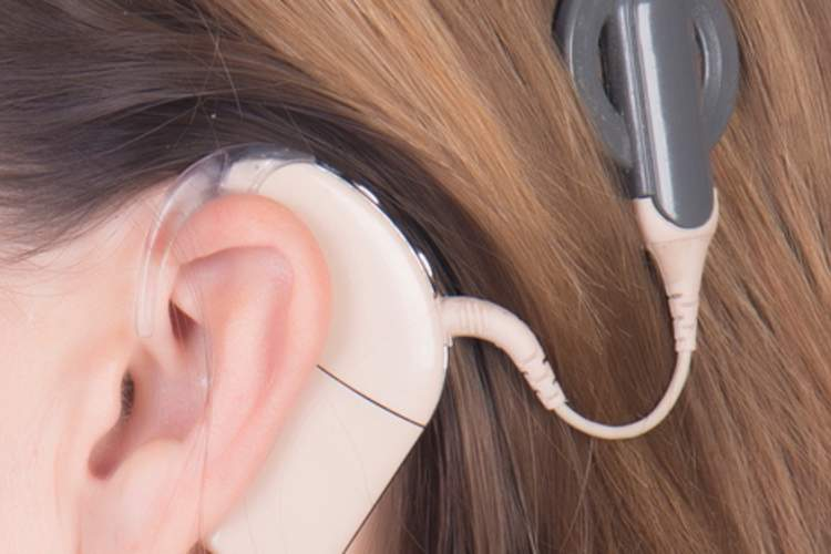 Cochlear Implants May Help Lift Depression