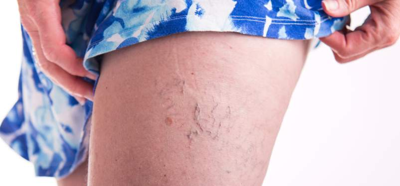 Itchy Spider Veins