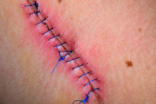 Close up of stitches after mole removal.