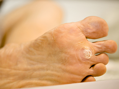 Treating Calluses, Boils, Corns, and Warts   HealthCentral