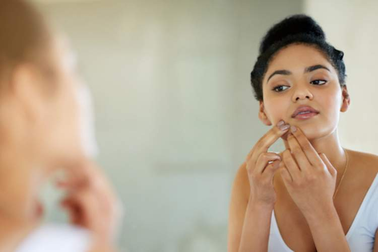 A woman looks in the mirror at acne around her jaw. Acne is one sign of PCOS.